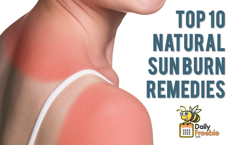 Relieve Sunburn:  10 Home Remedies